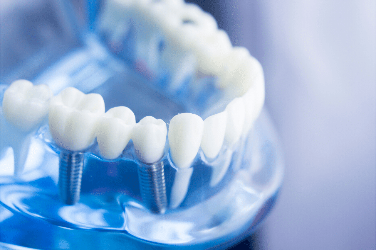 Dental Implants Edmonton Restorative