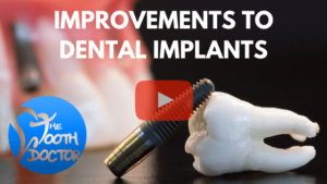 Dental Implants Edmonton - Article Video Thumb 1